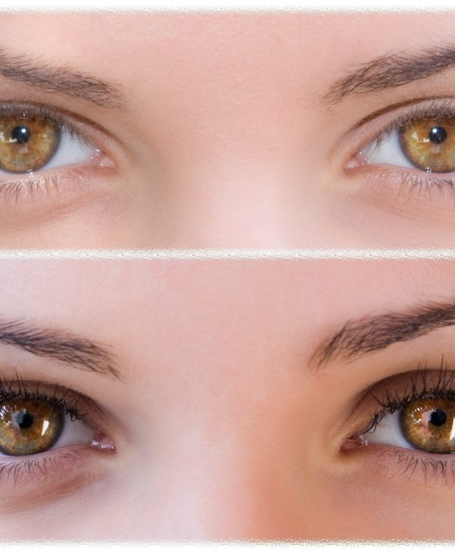 Bimatoprost Ophthalmic Solution BIMAT