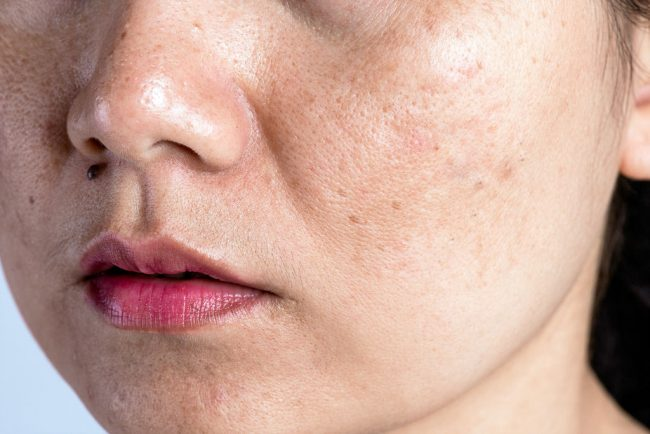 Woman with problematic skin and acne scars. Problem skincare and