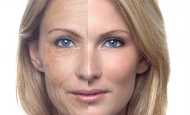 wrinkles, fine lines