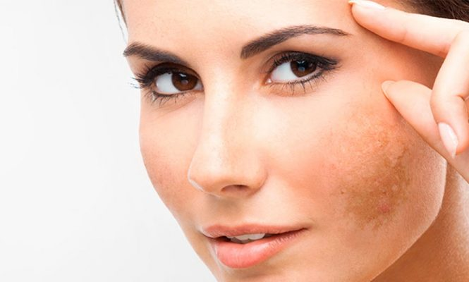 Melasma: What All You Need to Know About Melasma & its Cure?