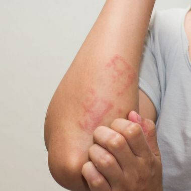 What is Eczema (Atopic Dermatitis) – Causes, Symptoms, Treatments