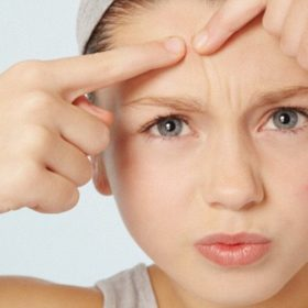 How Do You Get Rid Of Forehead Acne