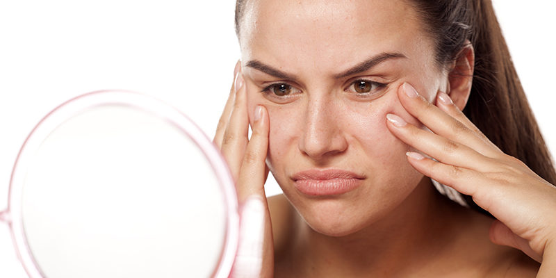 How Do You Get Rid Of Redness On Acne-Prone Face?